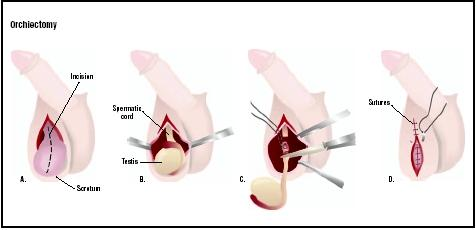 Orchiectomy Procedure Blood Removal Pain Time Infection