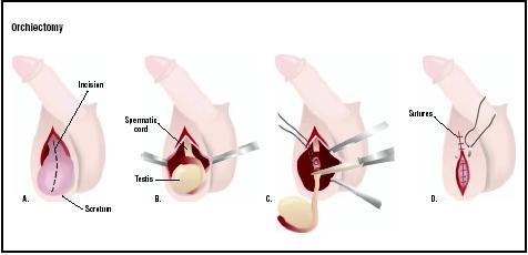 Human penis remove testicle