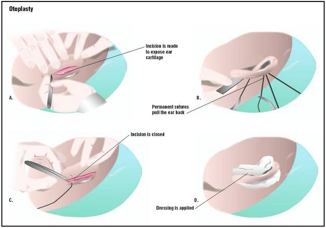During a setback otoplasty, an incision is made in the back of the ear, exposing cartilage (A). Permanent sutures in the cartilage pull the ear back closer to the skull (B). The incision is closed (C), and dressings are applied (D). (Illustration by GGS Inc.)