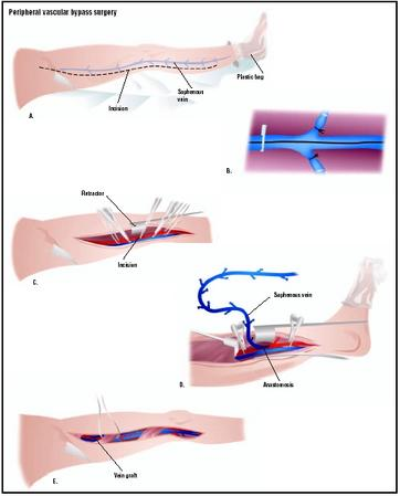 Peripheral Vascular Bypass Surgery Procedure Recovery Blood