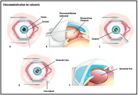 In a phacoemulsification procedure, an incision is first made in the cornea, the outer covering of the eye (A). A phacoemulsification instrument uses ultrasonic waves to break up the cataract (B). Pieces of the cataract are then suctioned out (C). To repair the patient's vision, a folded intraocular lens is pushed through the same incision (D) and opened in place (E). (Illustration by GGS Inc.)
