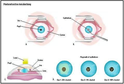 In PRK surgery, the eye is held open with a speculum (A). The gel-like coating on the eye, called the epithelium, is scraped away (B). A laser is used to reshape the cornea and improve vision (C). The epithelium repairs itself in a few days (D). (Illustration by GGS Inc.)