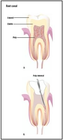 During a root canal, the diseased pulp of a tooth (A), is removed (B). The remaining empty tooth is filled and sealed with a filling or crown. (Illustration by GGS Inc.)