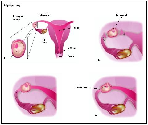 Fallopian Tube Ectopic Pregnancy