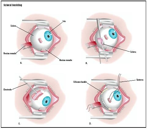 In a scleral buckling procedure, one of the eye's rectus muscles are severed to gain access to the sclera (A). The sclera is cut open (B), and an electrode is applied to the area of retinal detachment (C). A silicone buckle is threaded into place beneath the rectus muscles (D), and the severed muscle is repaired. (Illustration by GGS Inc.)