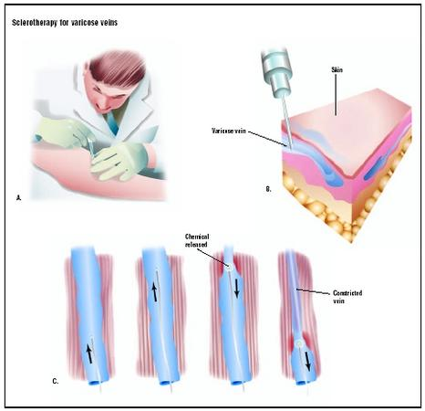 Sclerotherapy for Varicose Veins - procedure, blood, pain