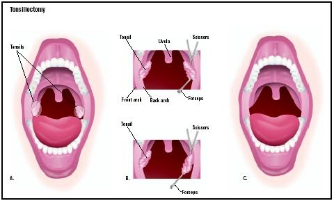Tonsil Stones Pain Relief