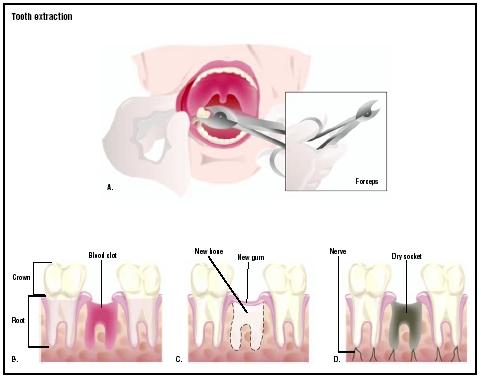 Tooth Extraction - procedure, blood, removal, pain