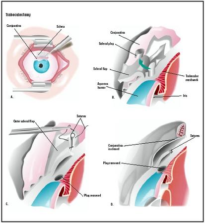 During a trabeculectomy, the patient's eye is held open with a speculum. The outer layer, or conjunctiva, and the white of the eye, or sclera, are cut open (A). A superficial scleral flap is created and a plug of sclera and underlying trabecular network is removed (B). This allows the fluid in the eye to circulate, relieving pressure. The scleral flap is closed and sutured (C). The conjunctiva is closed (D). (Illustration by GGS Inc.)
