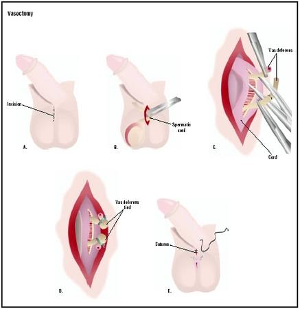 In a vasectomy, an incision is made in the man's scrotum. The spermatic cord is pulled out (B) and incised to expose the vas deferens, which is then severed (C). The ends may be cauterized or tied off (D). After the procedure is repeated on the opposite cord, the scrotal incision is closed (E). (Illustration by GGS Inc.)