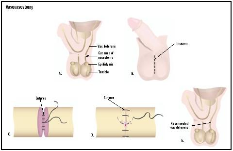 In a vasovasostomy, the surgeon makes an incision in scrotum at the site of the vasectomy scar (B). The spermatic cords are located, and the two vas deferens are reconnected with two layers of suture (C and D). (Illustration by GGS Inc.)