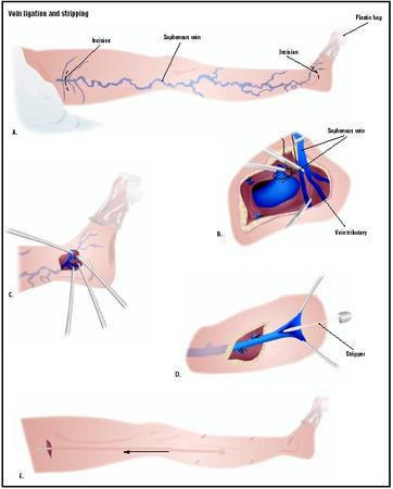 To treat varicose veins in the leg, the saphenous vein may be removed by ligation and stripping (A). First an incision is made in the upper thigh, and the saphenous vein is separated from its tributaries (B). Another incision is made above the foot (C). The lower portion of the vein is cut, and a stripper is inserted into the vein (D). The stripper is pulled through the vein and out the incision in the upper thigh (E). (Illustration by GGS Inc.)