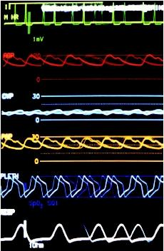 Normal vital signs, from the top: heart rate, arterial blood pressure (ABP), central venous pressure (CVP), pulmonary artery pressure (PAP), blood oxygen (PLETH), and respiration rate. (Photograph by James King-Holmes. Science Source/Photo Researchers. Reproduced by permission.)