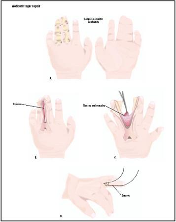 This webbed finger shows a simple, complete syndactyly, meaning the bones for two fingers are complete, and only the soft tissues form the webbed section (A). To repair this, an incision is made in the skin of the webbing (B). Tissues and muscles are severed (C), and the two separated fingers are stitched (D). (Illustration by GGS Inc.)